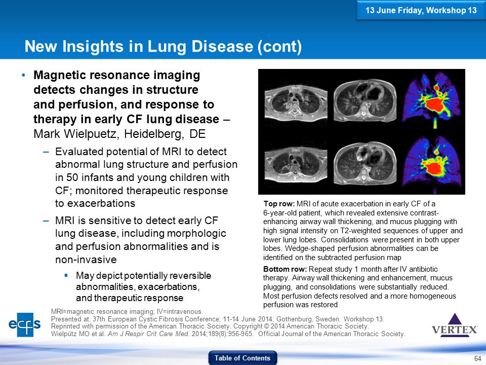 New Insights in Lung Disease (cont)