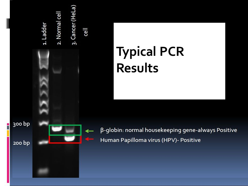 Typical PCR Results 300 bp 200 bp
