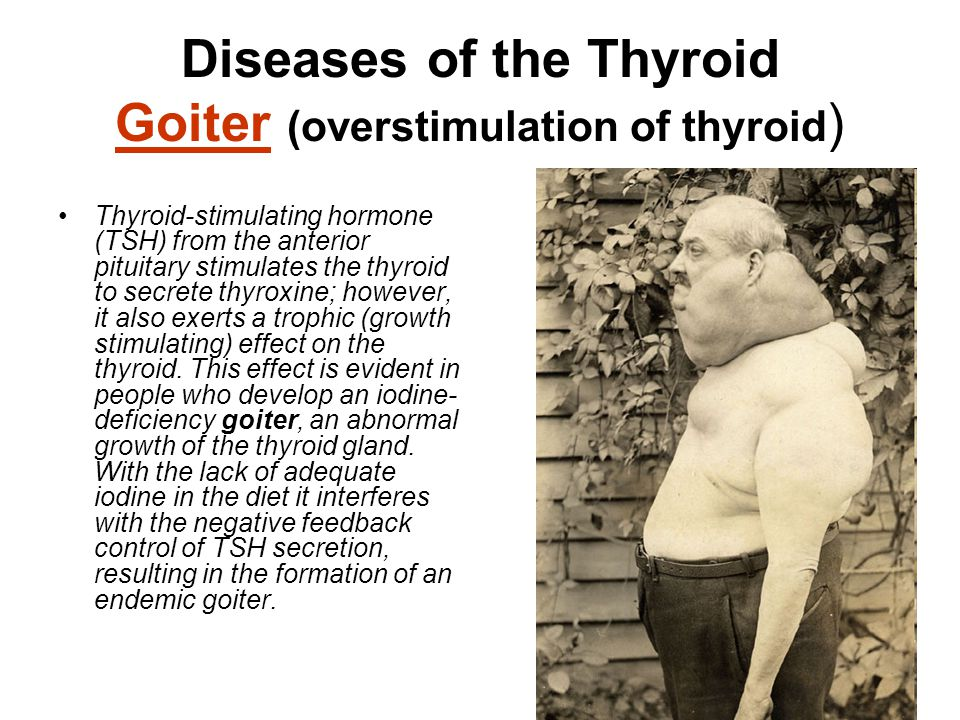 Diseases of the Thyroid Goiter (overstimulation of thyroid)