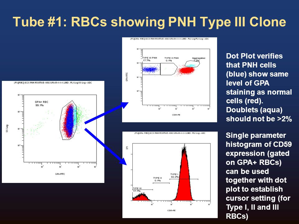 Tube #1: RBCs showing PNH Type III Clone