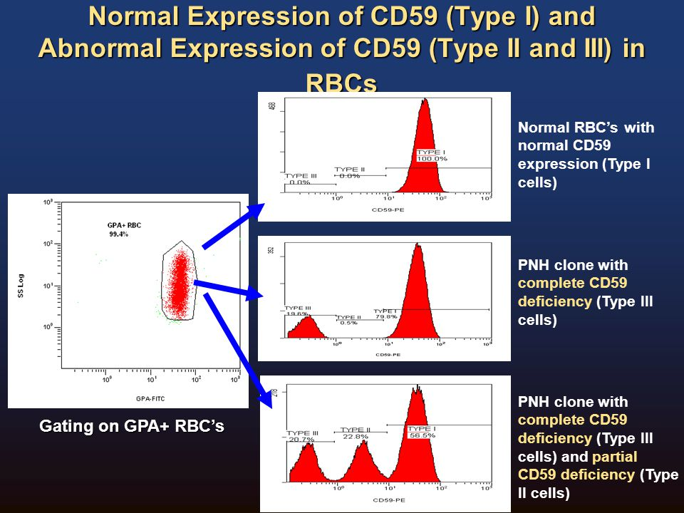Normal Expression of CD59 (Type I) and Abnormal Expression of CD59 (Type II and III) in RBCs