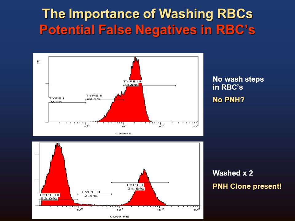 The Importance of Washing RBCs Potential False Negatives in RBC's
