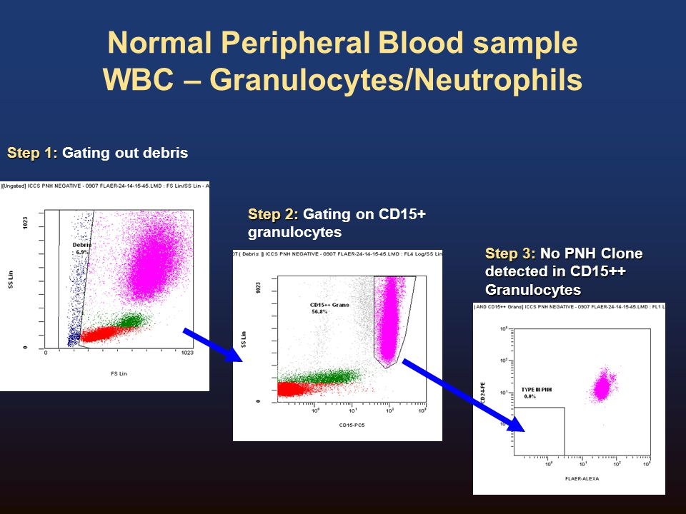 Normal Peripheral Blood sample WBC – Granulocytes/Neutrophils