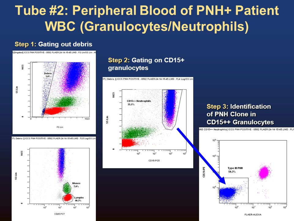 Tube #2: Peripheral Blood of PNH+ Patient WBC (Granulocytes/Neutrophils)