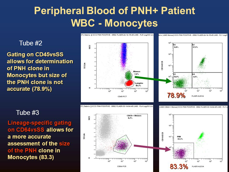 Peripheral Blood of PNH+ Patient WBC - Monocytes