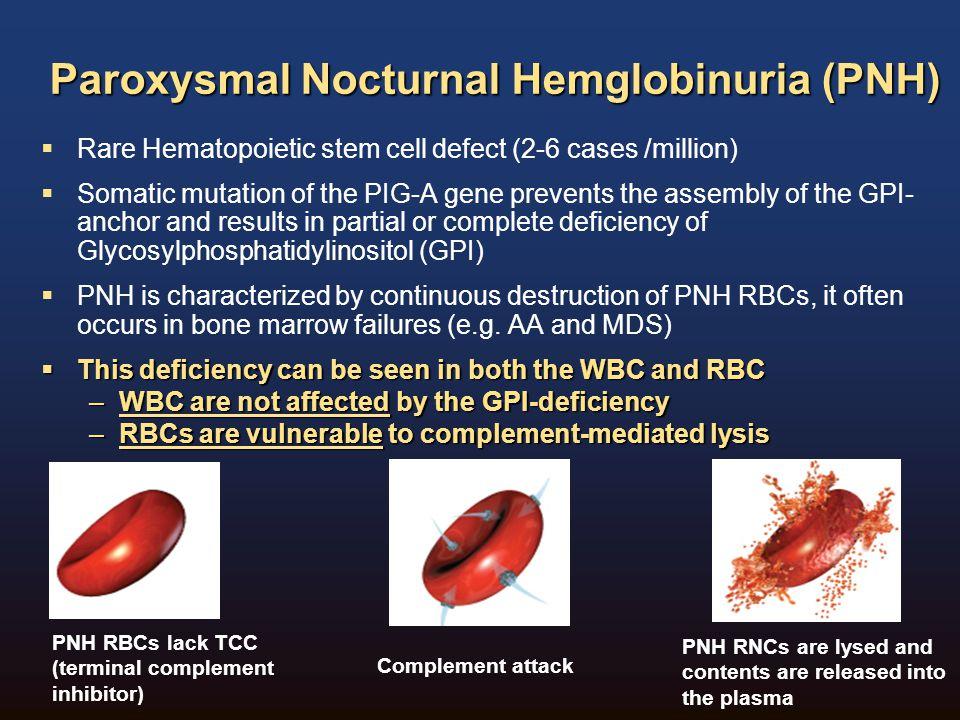 Paroxysmal Nocturnal Hemglobinuria (PNH)