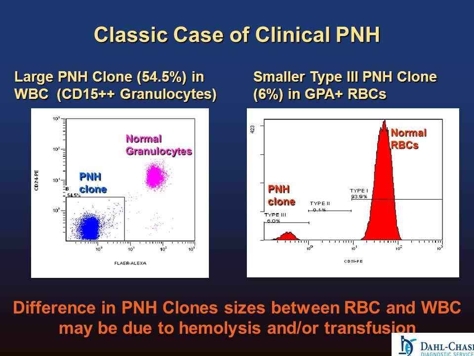 Classic Case of Clinical PNH