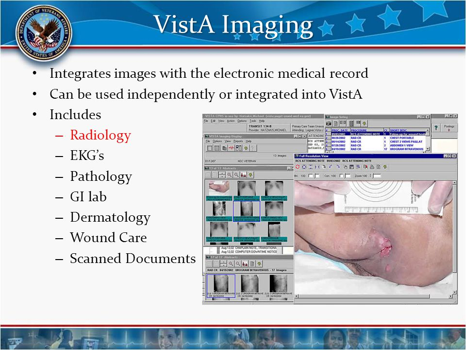 VistA Imaging Integrates images with the electronic medical record