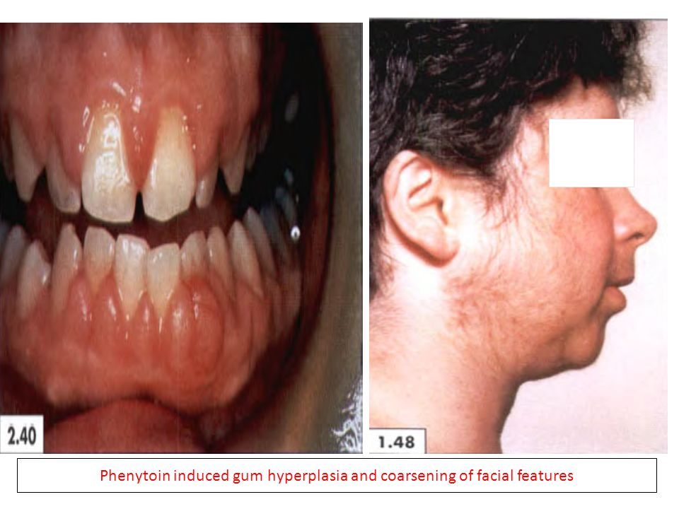 Phenytoin induced gum hyperplasia and coarsening of facial features