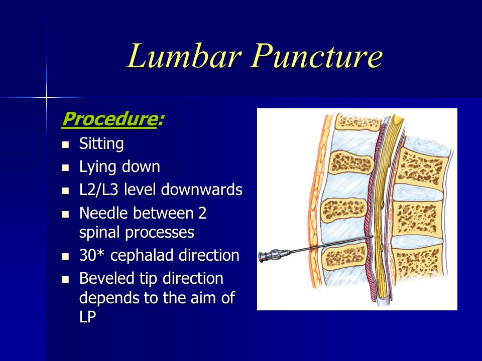Lumbar Puncture Procedure: Sitting Lying down L2/L3 level downwards