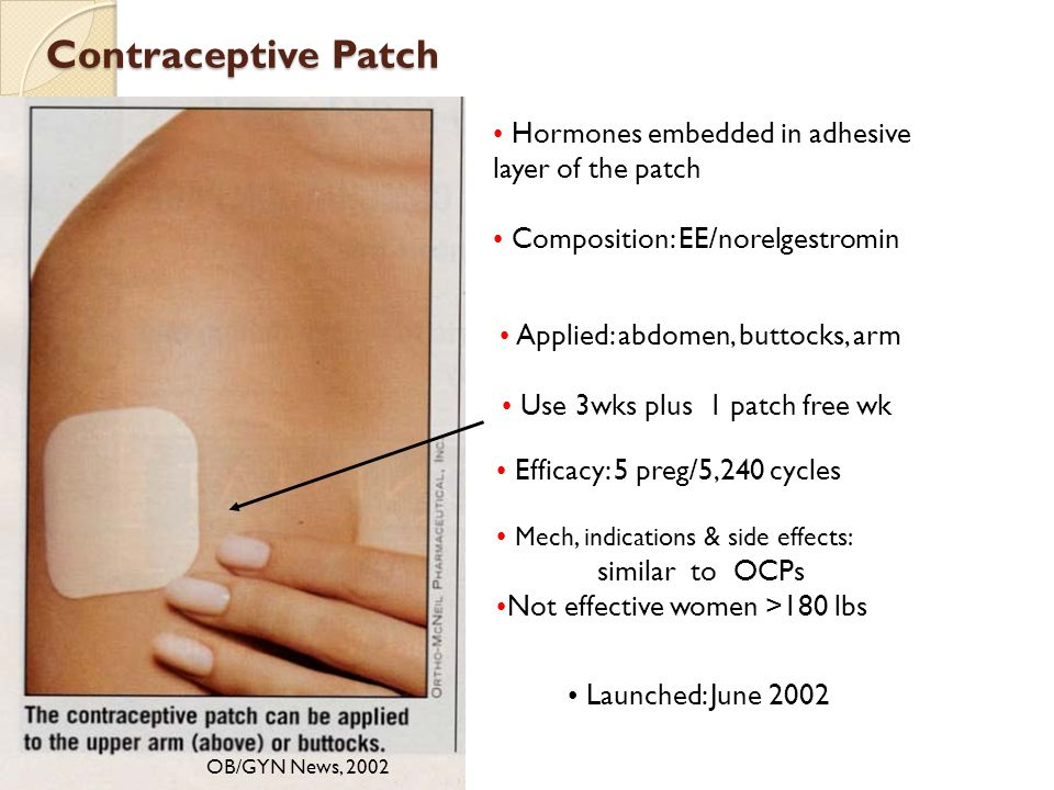 Contraceptive Patch Hormones embedded in adhesive layer of the patch
