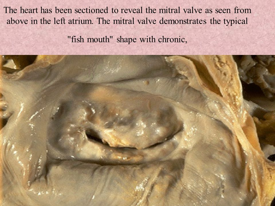 The heart has been sectioned to reveal the mitral valve as seen from above in the left atrium.