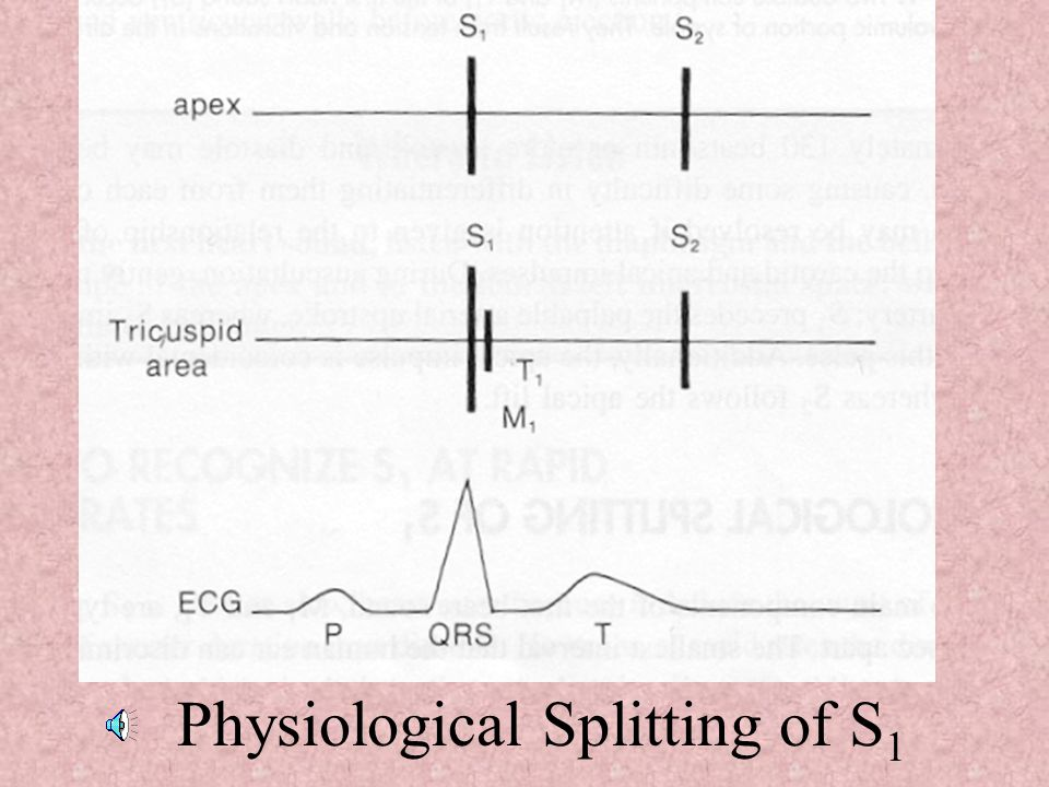 Physiological Splitting of S1