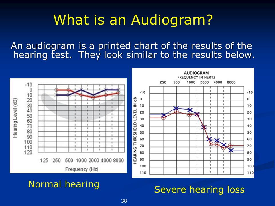 What is an Audiogram Normal hearing Severe hearing loss