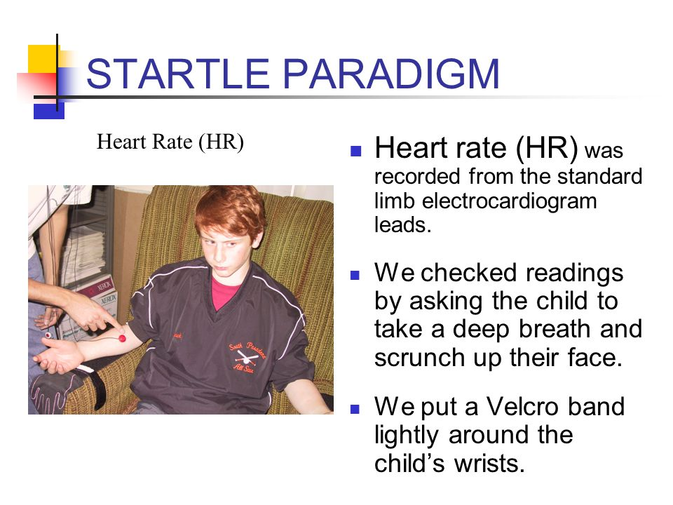 STARTLE PARADIGM Heart Rate (HR) Heart rate (HR) was recorded from the standard limb electrocardiogram leads.