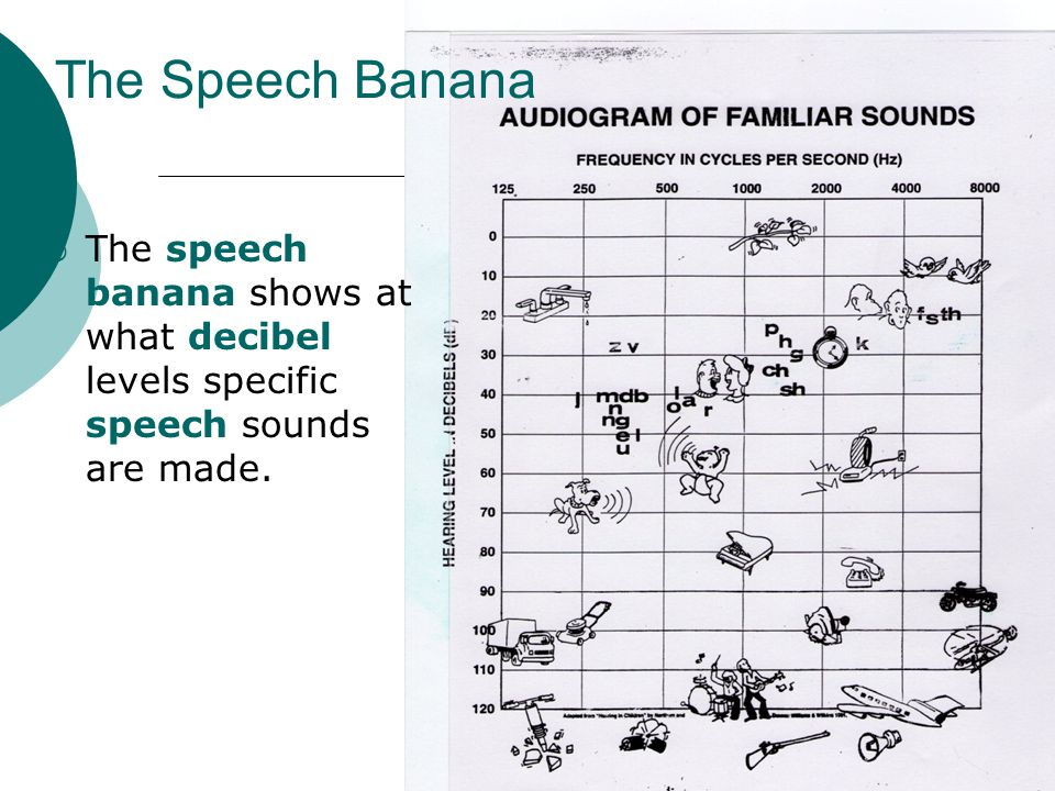 The Speech Banana The speech banana shows at what decibel levels specific speech sounds are made.