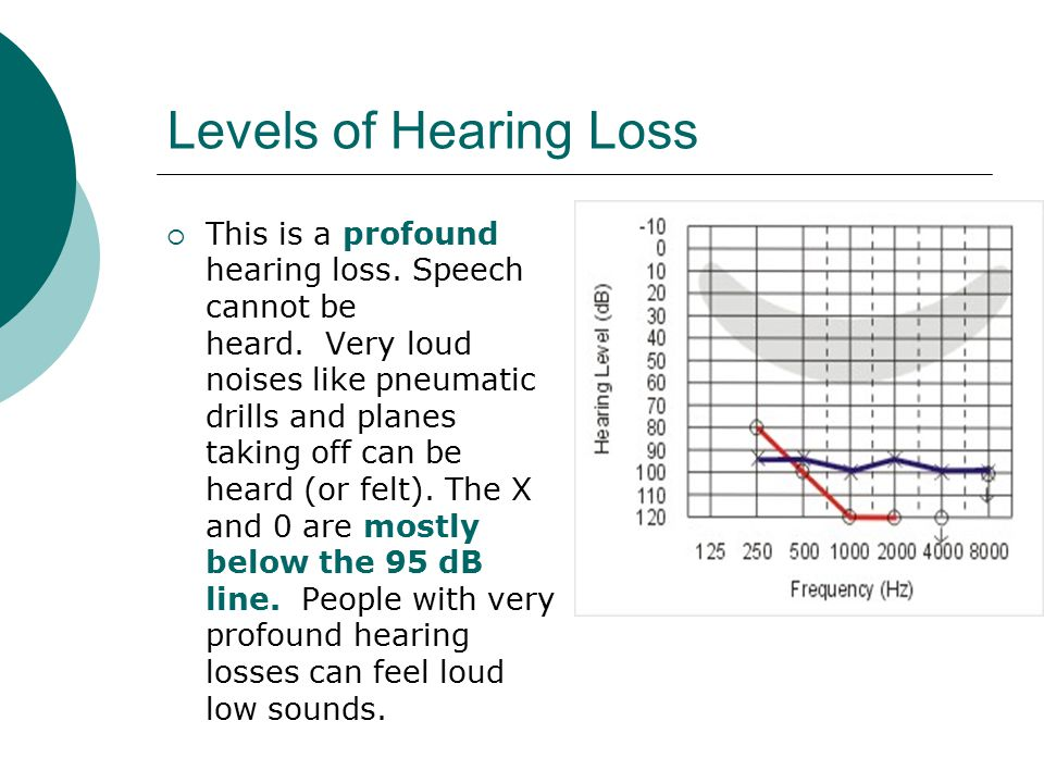 Levels of Hearing Loss
