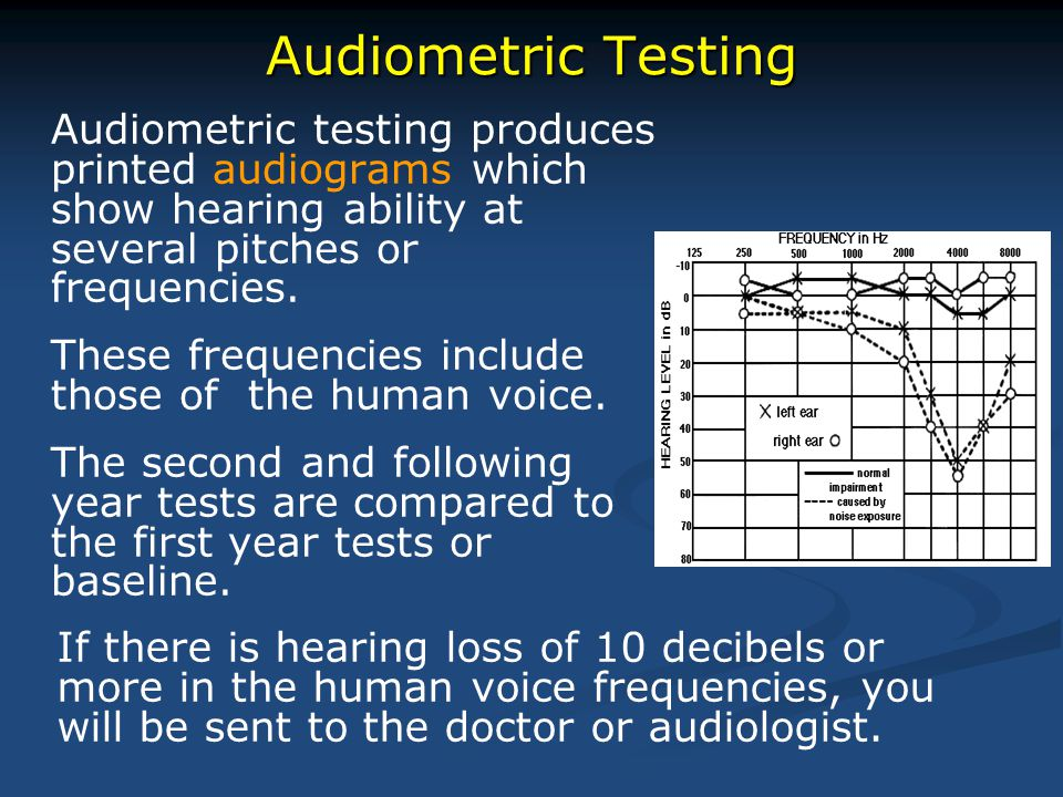 Audiometric Testing Audiometric testing produces printed audiograms which show hearing ability at several pitches or frequencies.