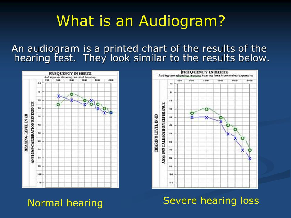 What is an Audiogram Severe hearing loss Normal hearing