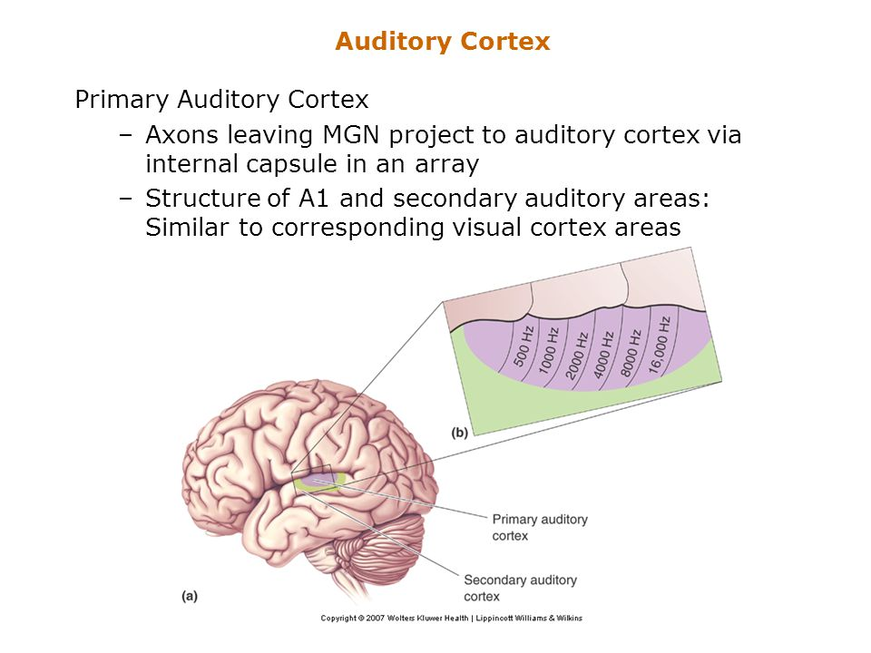 Auditory Cortex Primary Auditory Cortex. Axons leaving MGN project to auditory cortex via internal capsule in an array.