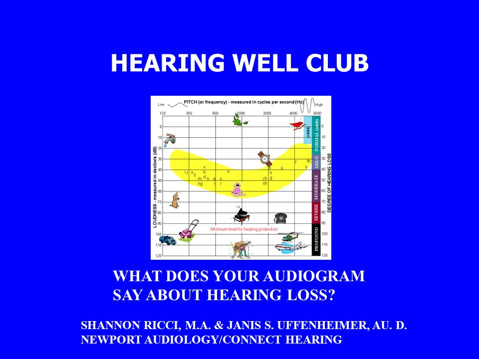 HEARING WELL CLUB WHAT DOES YOUR AUDIOGRAM SAY ABOUT HEARING LOSS