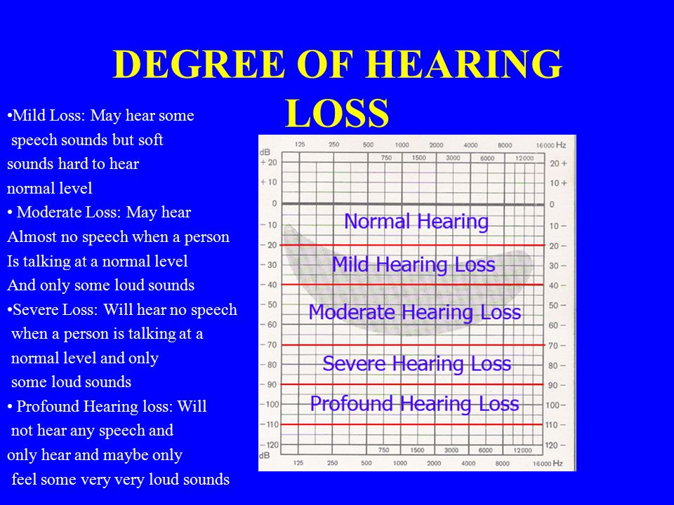 DEGREE OF HEARING LOSS Mild Loss: May hear some speech sounds but soft