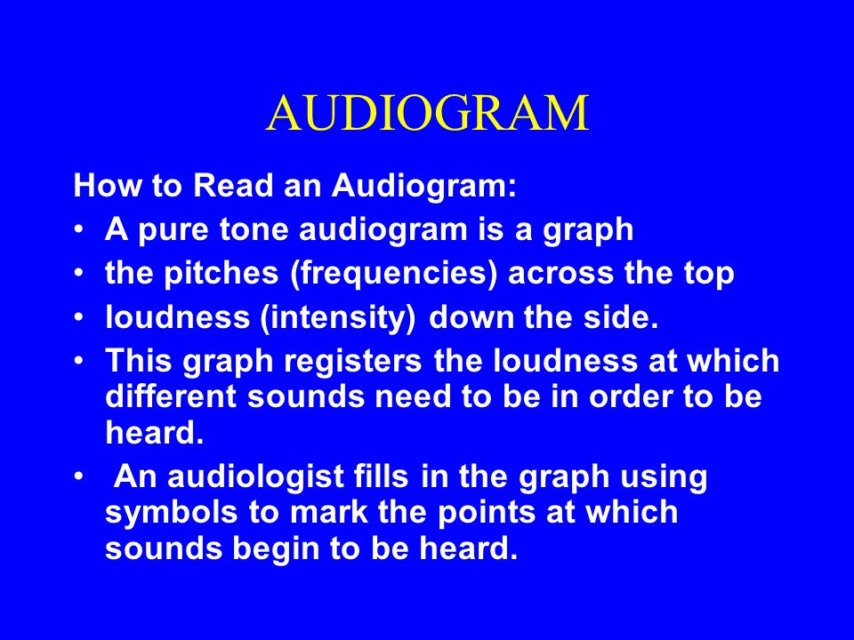 AUDIOGRAM How to Read an Audiogram: A pure tone audiogram is a graph