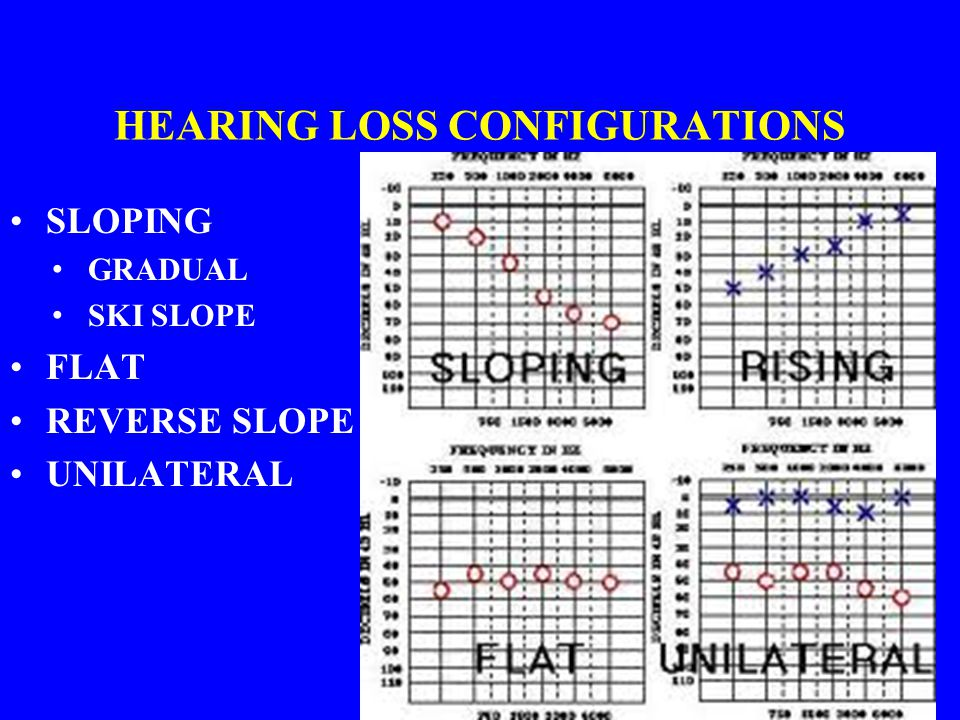 HEARING LOSS CONFIGURATIONS