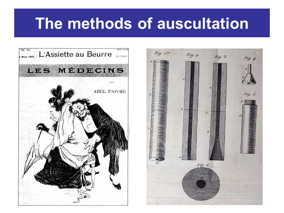 The methods of auscultation