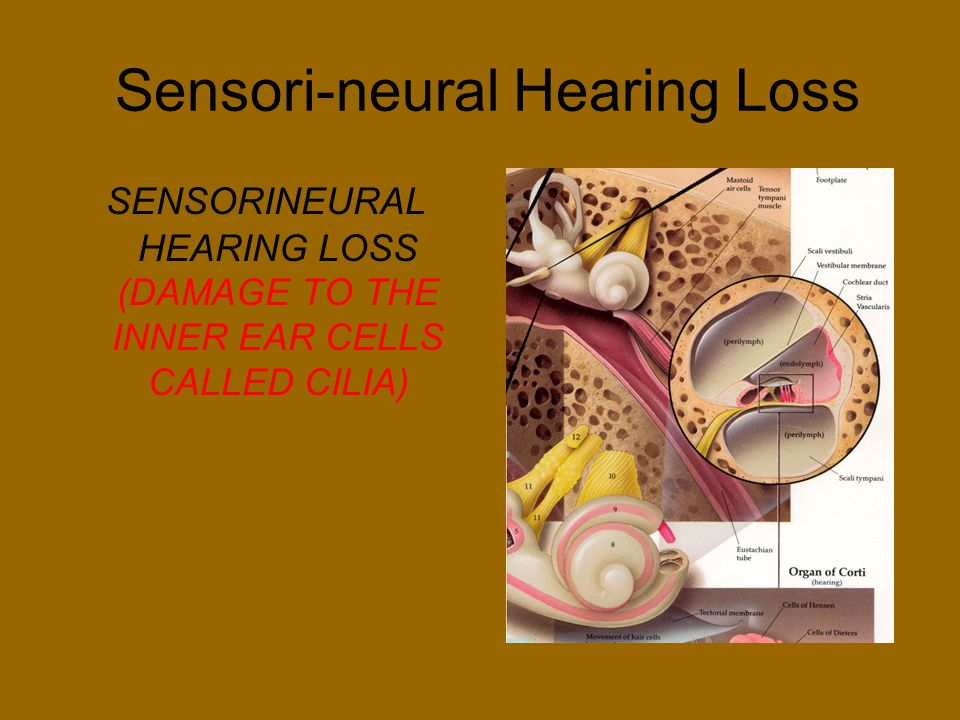Sensori-neural Hearing Loss