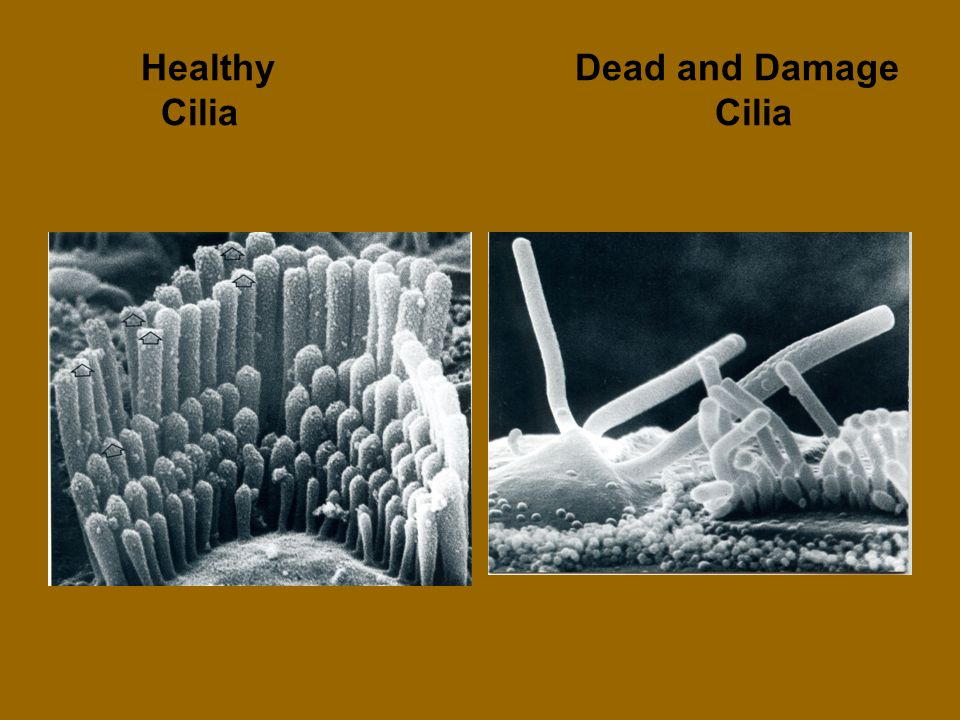 Healthy Dead and Damage Cilia Cilia