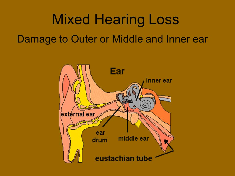 Damage to Outer or Middle and Inner ear