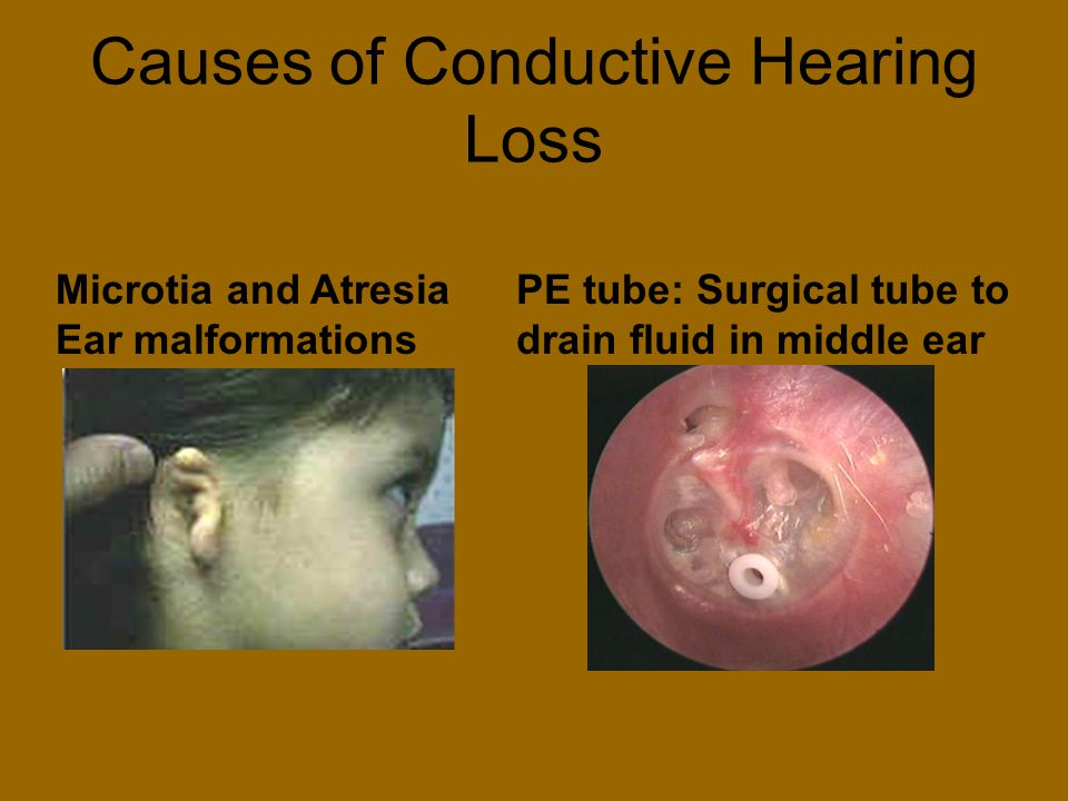 Causes of Conductive Hearing Loss