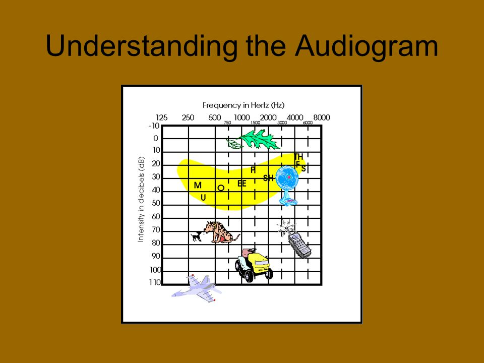 Understanding the Audiogram