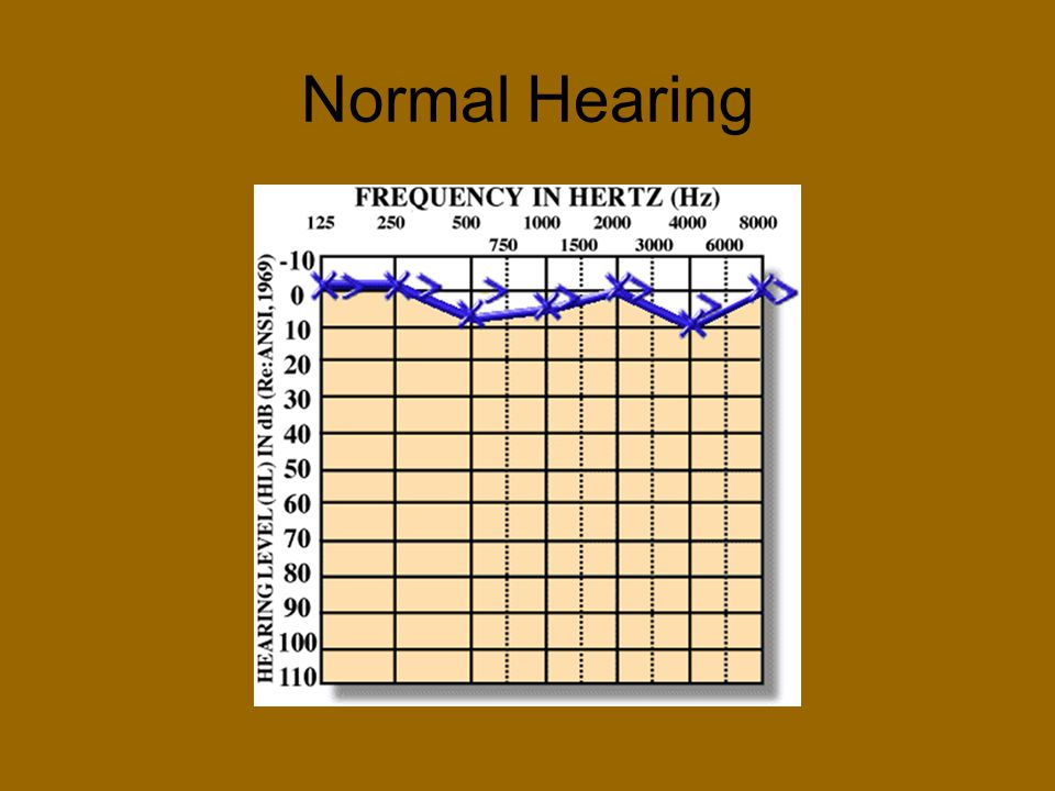 Normal Hearing