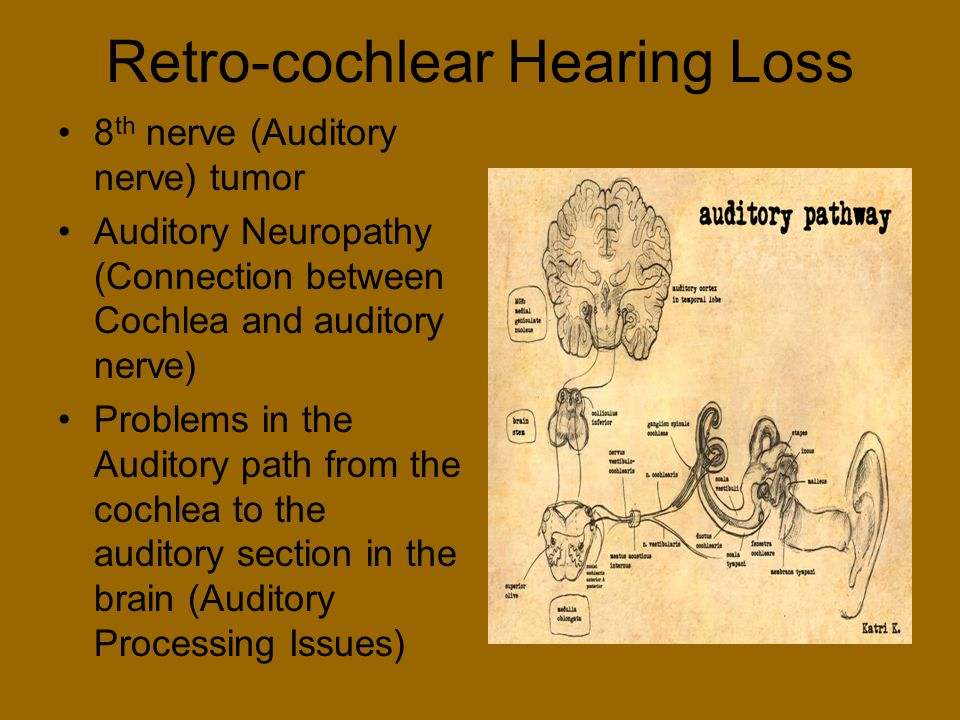 Retro-cochlear Hearing Loss