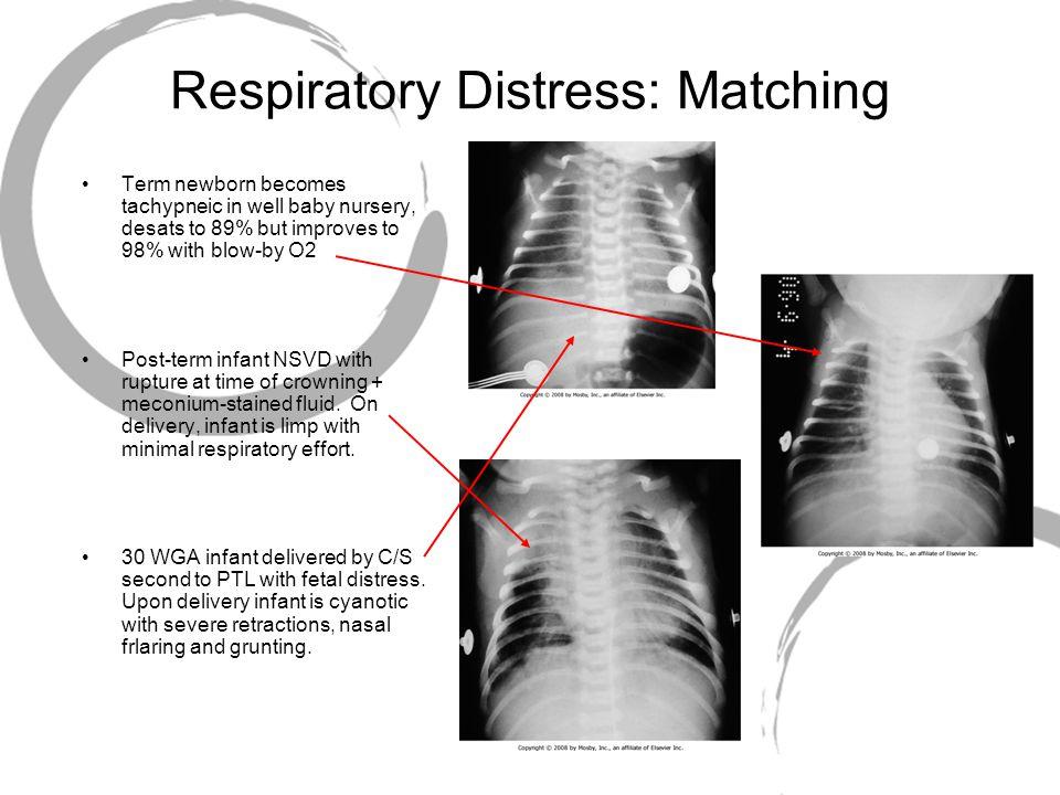 Respiratory Distress: Matching