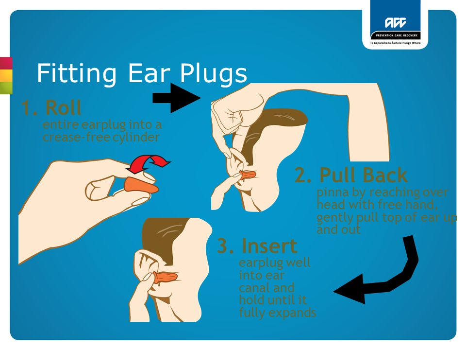 Fitting Ear Plugs 1. Roll entire earplug into a crease-free cylinder