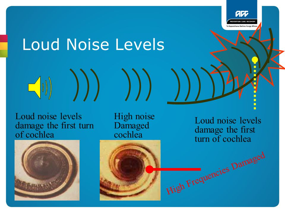 Loud Noise Levels Loud noise levels damage the first turn of cochlea