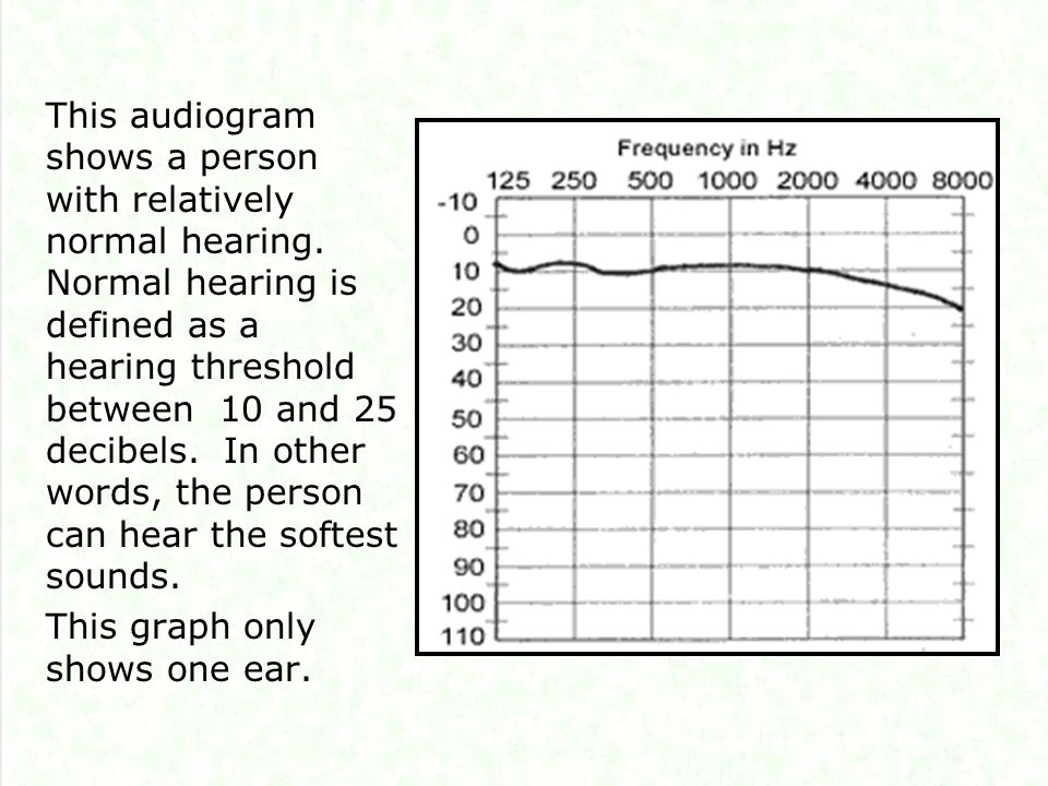This audiogram shows a person with relatively normal hearing