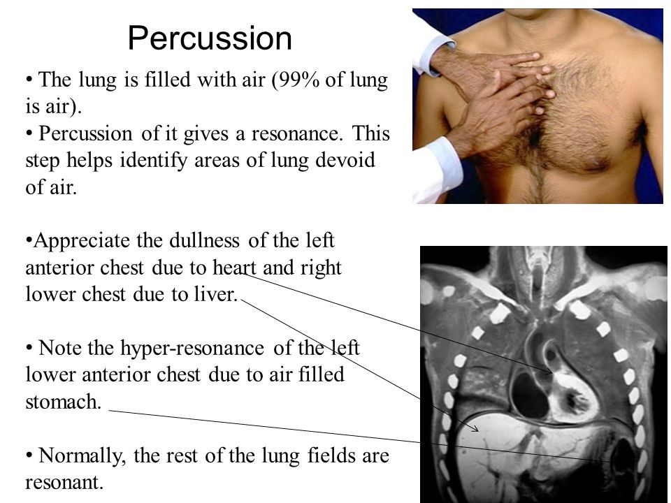 Percussion The lung is filled with air (99% of lung is air).