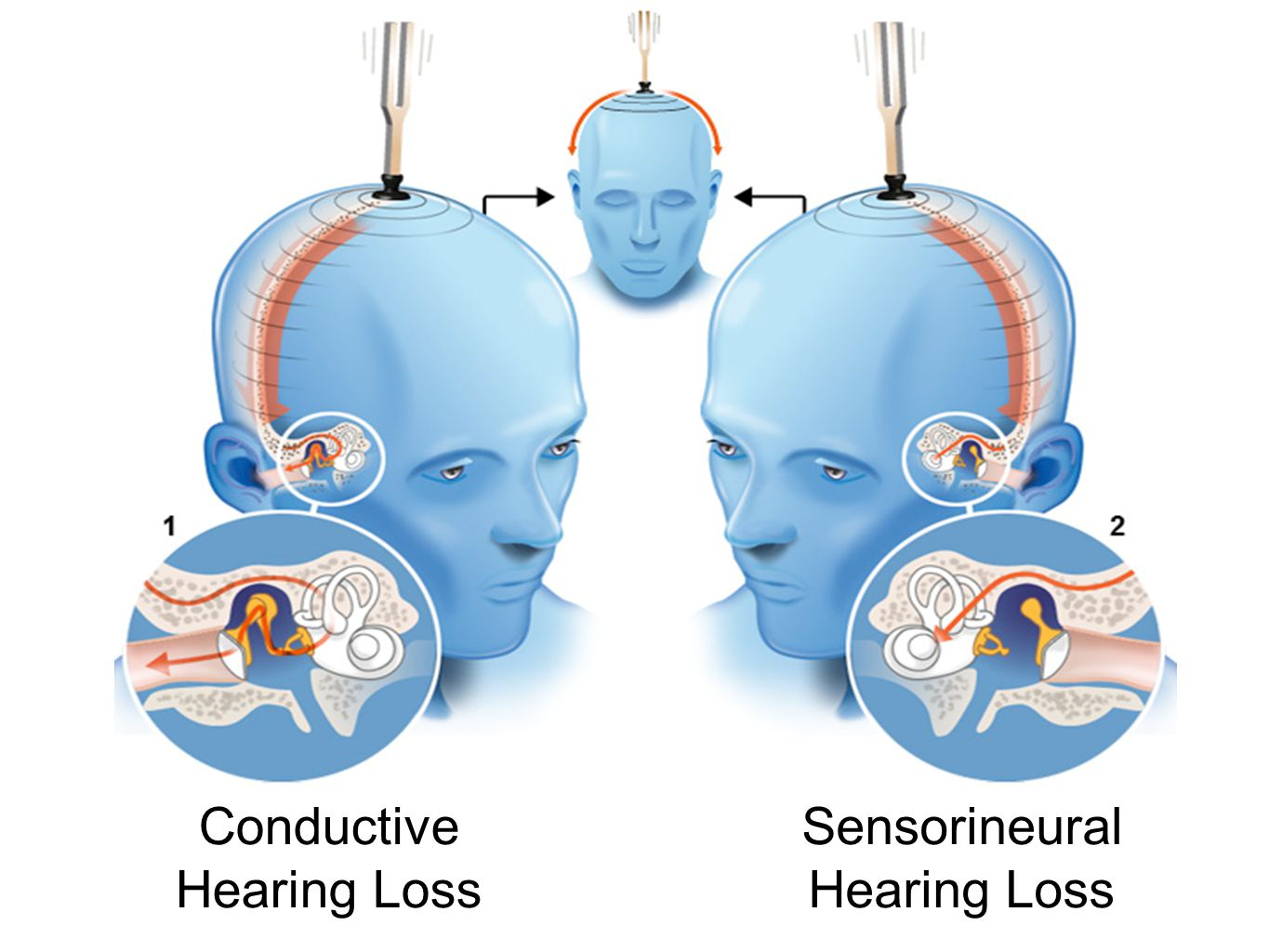 Conductive Hearing Loss Sensorineural Hearing Loss