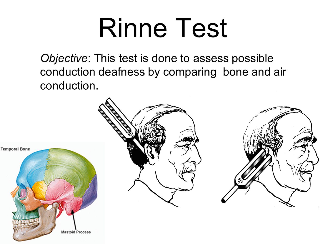 Rinne Test Objective: This test is done to assess possible conduction deafness by comparing bone and air conduction.