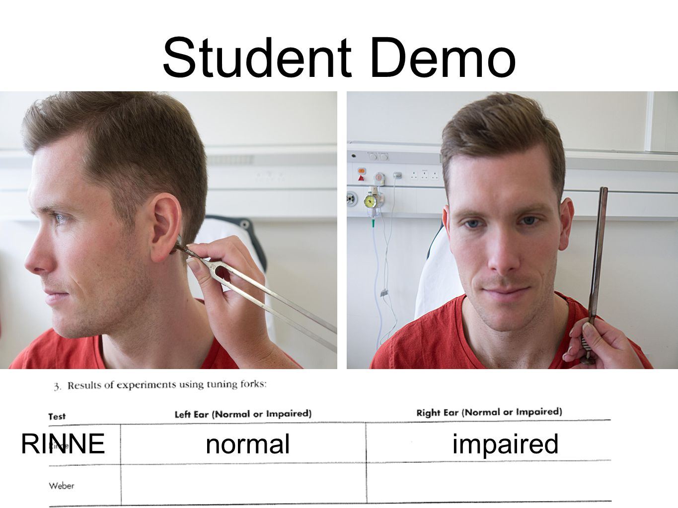Student Demo RINNE normal impaired