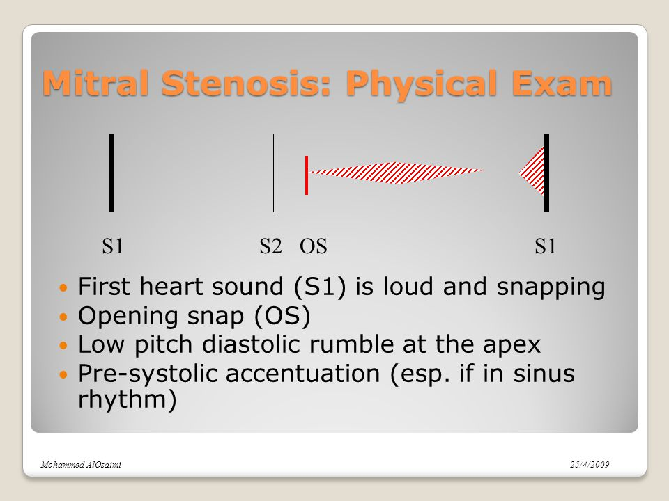 Mitral Stenosis: Physical Exam