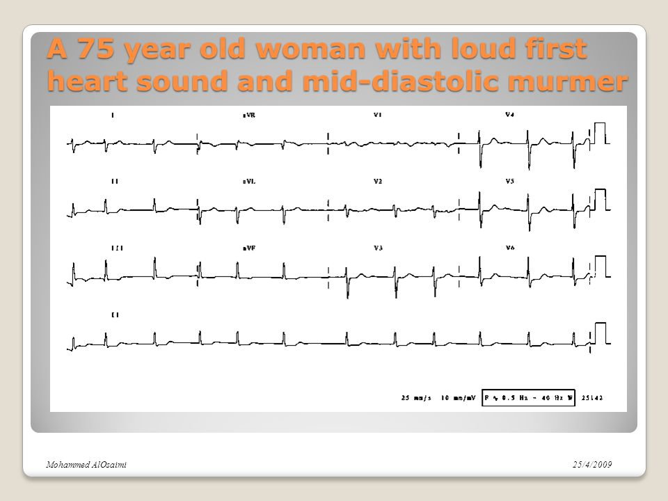 A 75 year old woman with loud first heart sound and mid-diastolic murmer