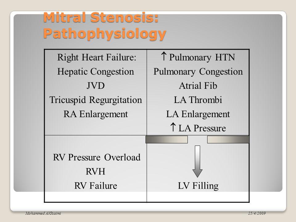 Mitral Stenosis: Pathophysiology