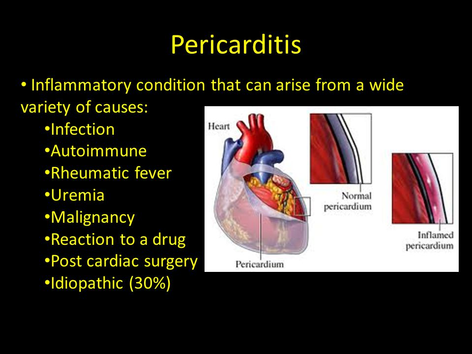 Pericarditis Inflammatory condition that can arise from a wide variety of causes: Infection. Autoimmune.