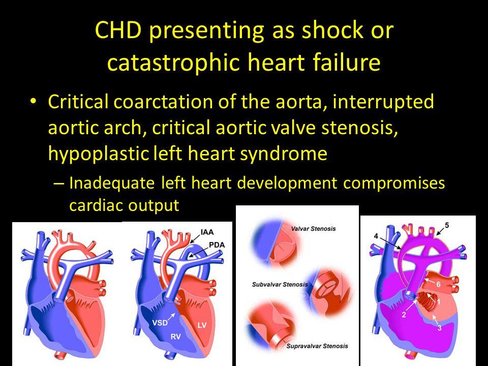 CHD presenting as shock or catastrophic heart failure