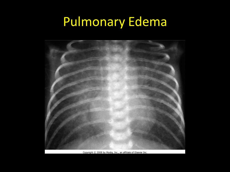 Pulmonary Edema TAPVR- figure 8 or snowman appearance